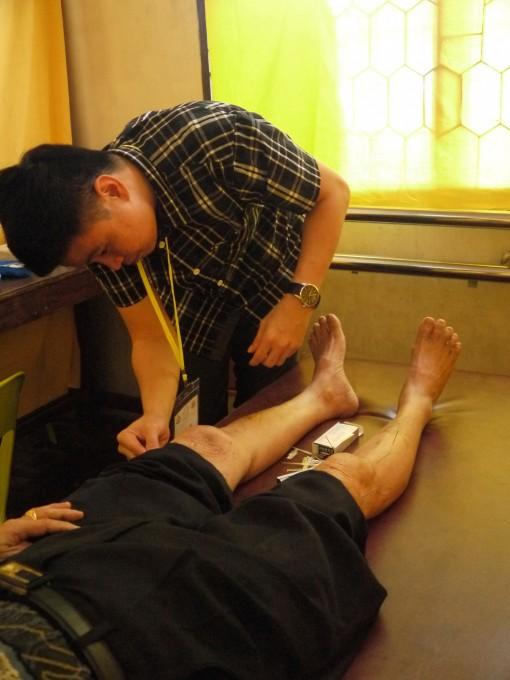 蔡盛光医师为病黎针灸时影。